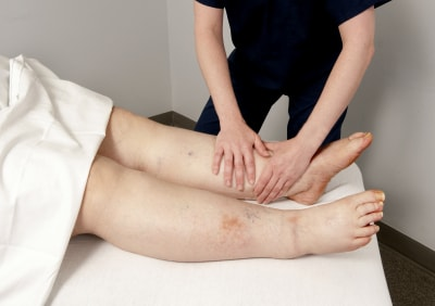 physical therapist treating a patient who has lymphedema